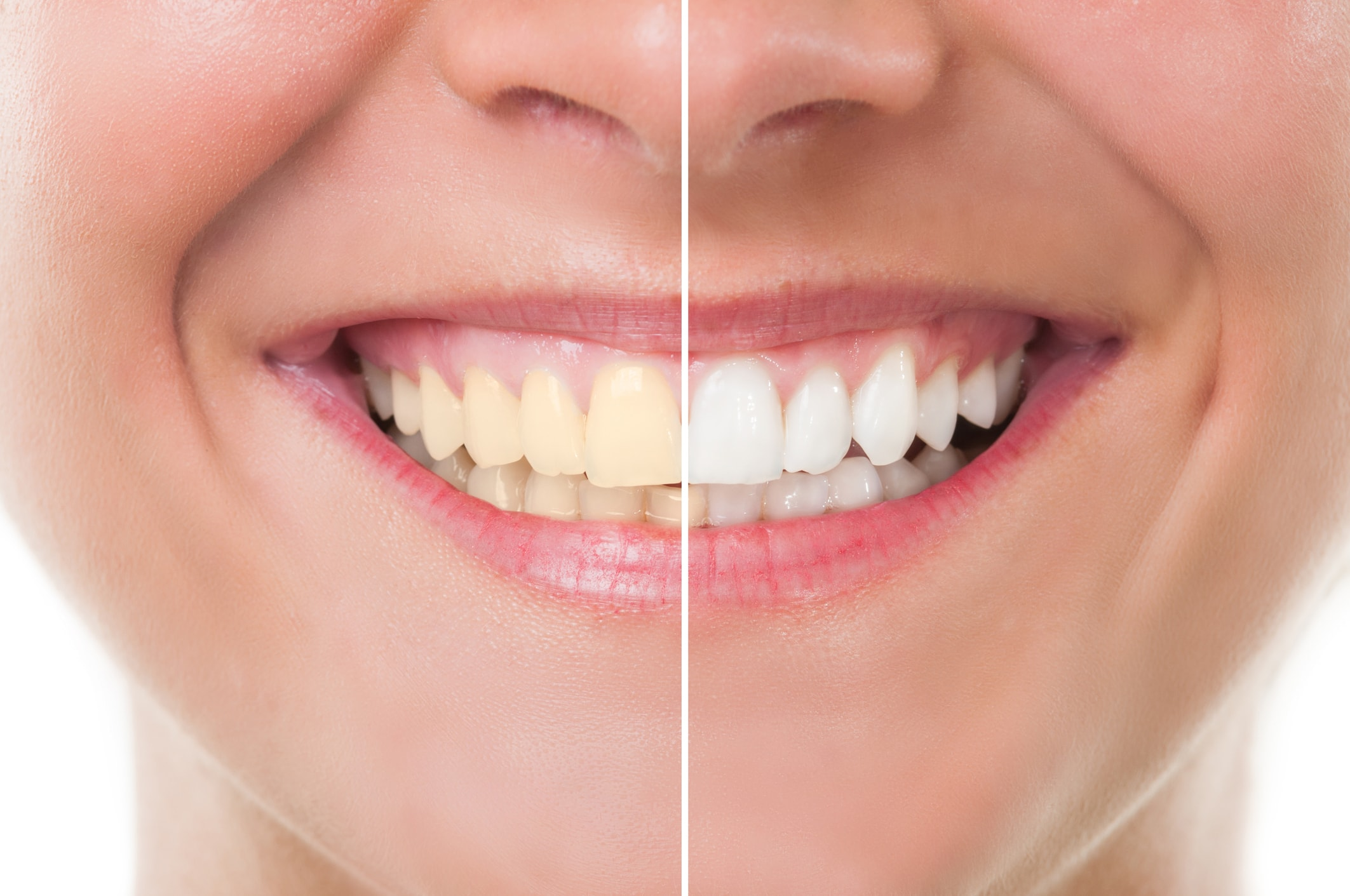 teeth whitening at Encino Cosmetic Dentistry