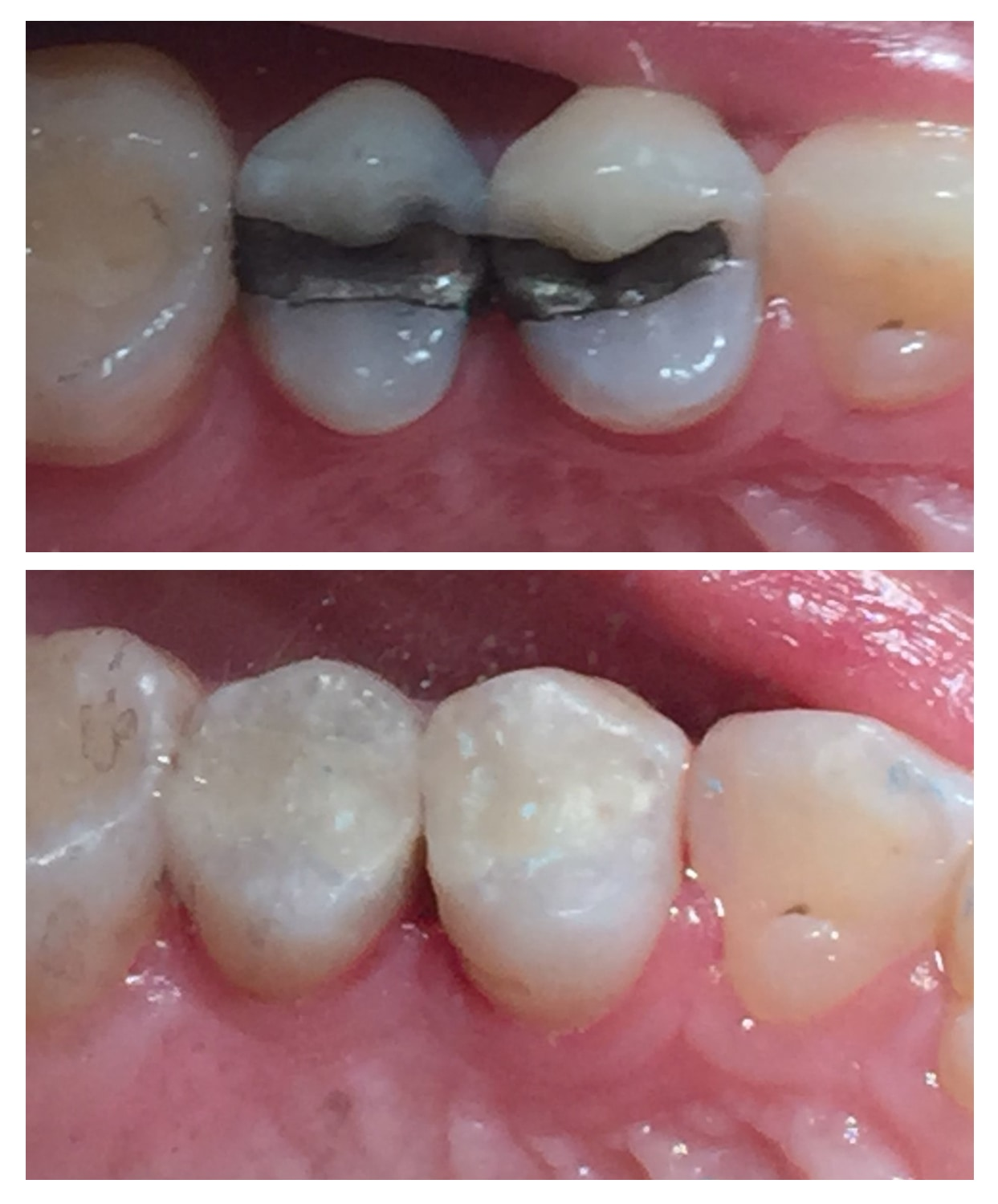Patients teeth after amalgam and composite fillings by Encino dentist at Encino Cosmetic Dentistry.